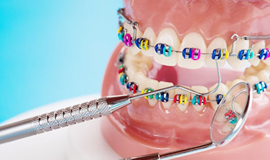 Orthodontic model with colorful metals