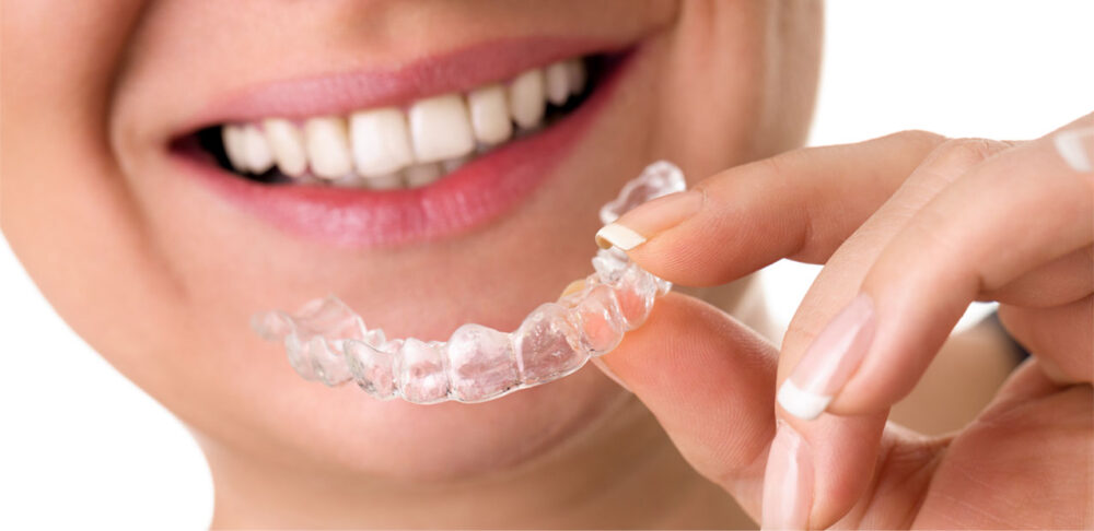 For Invisalign Treatment in Falls Church, Visit Kakar Dental Group Today