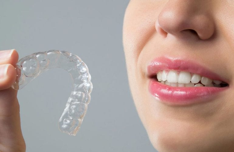 Clear invisalign braces