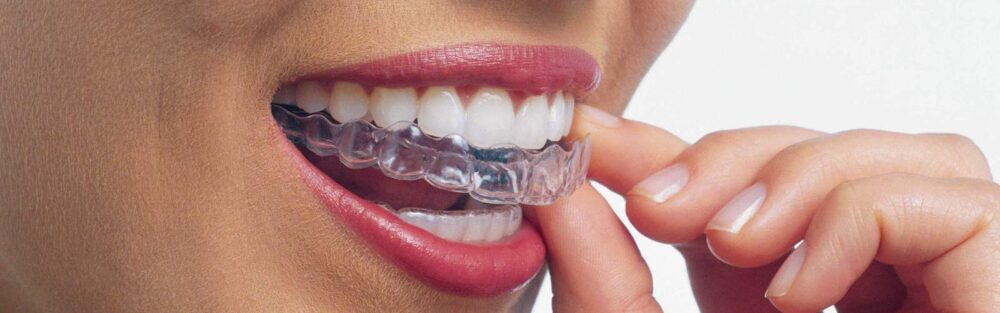 Invisalign Braces Falls Church