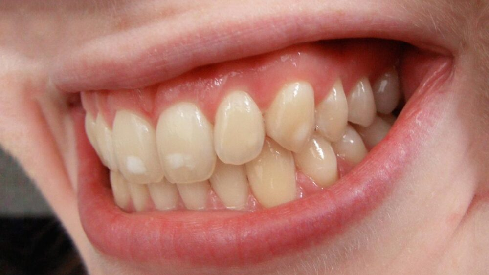 Dental Fluorosis in Kids