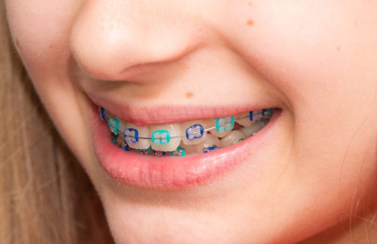 Orthodontics Dentist in Falls Church