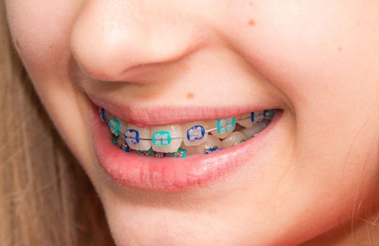Orthodontics Dentist in Falls Church