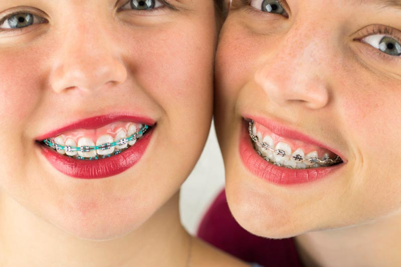 Ceramic Braces for Children's Teeth