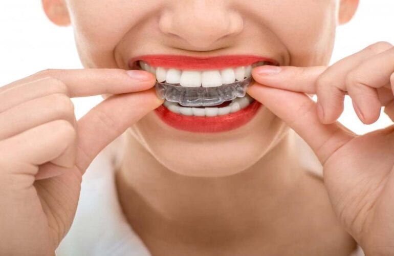 AGE LIMIT TO Invisalign TREATMENTS