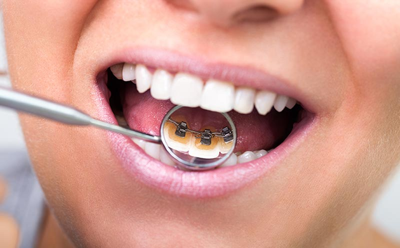Lingual braces on front teeth