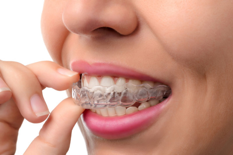 BEST AGE FOR Invisalign