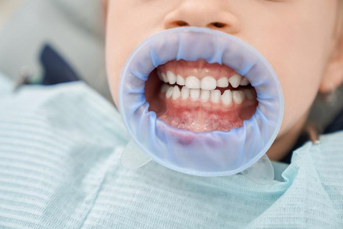 Pediatric-sedation-dentist-procedure-kids-dentalcare