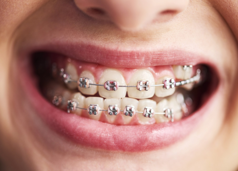 Child Teeth with braces